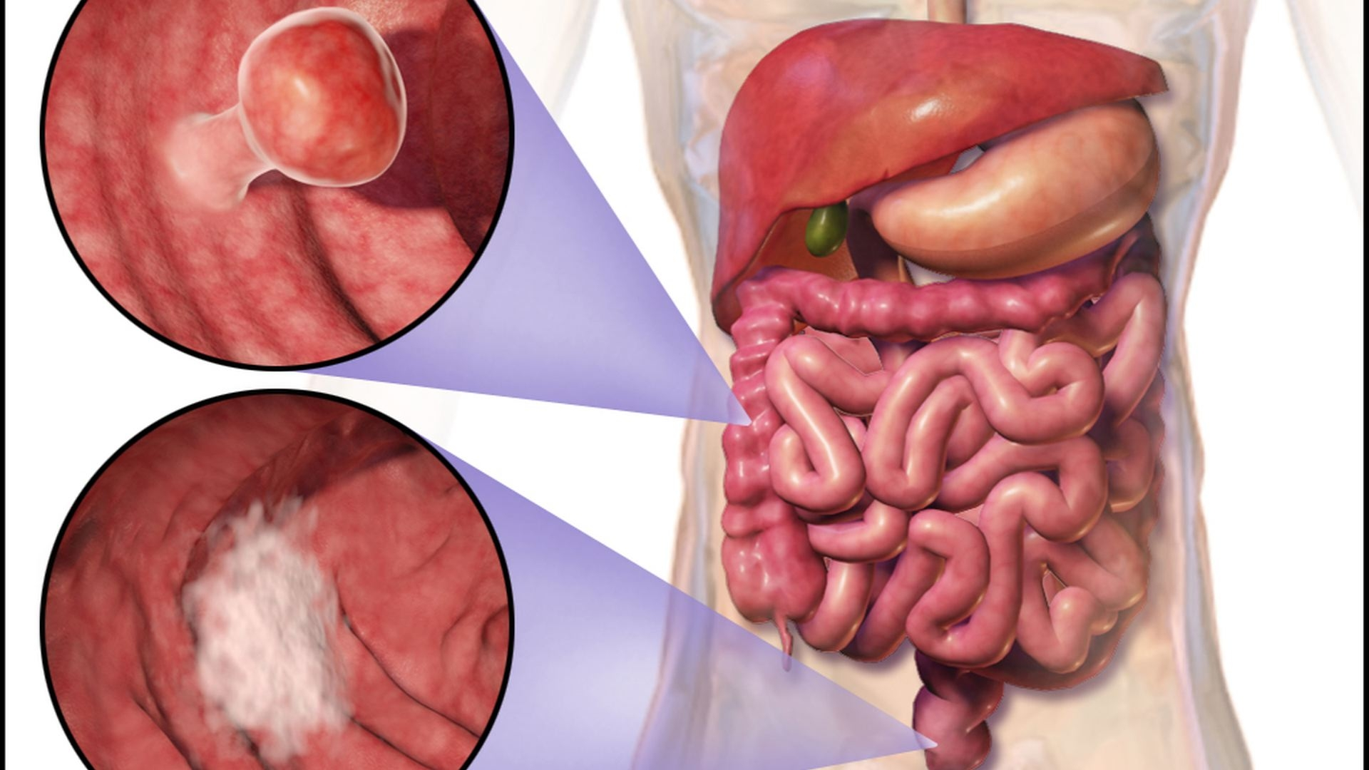 Colorectal Cancer is 3rd Leading Cause of Cancer Deaths on Guam ...